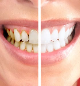 professional-teeth-whitening-thornton-co