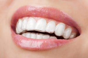 thornton-invisalign-clear-braces