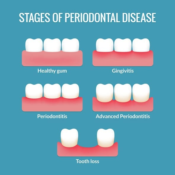 Periodontal Treatment in Thornton, CO
