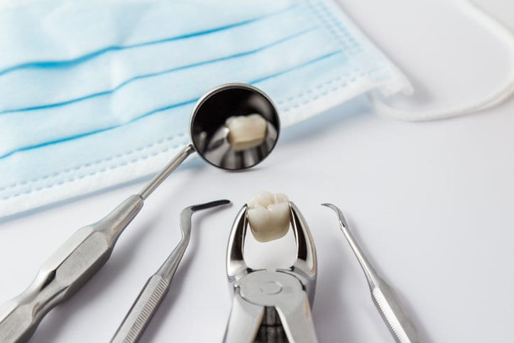 Tooth Extraction Thornton